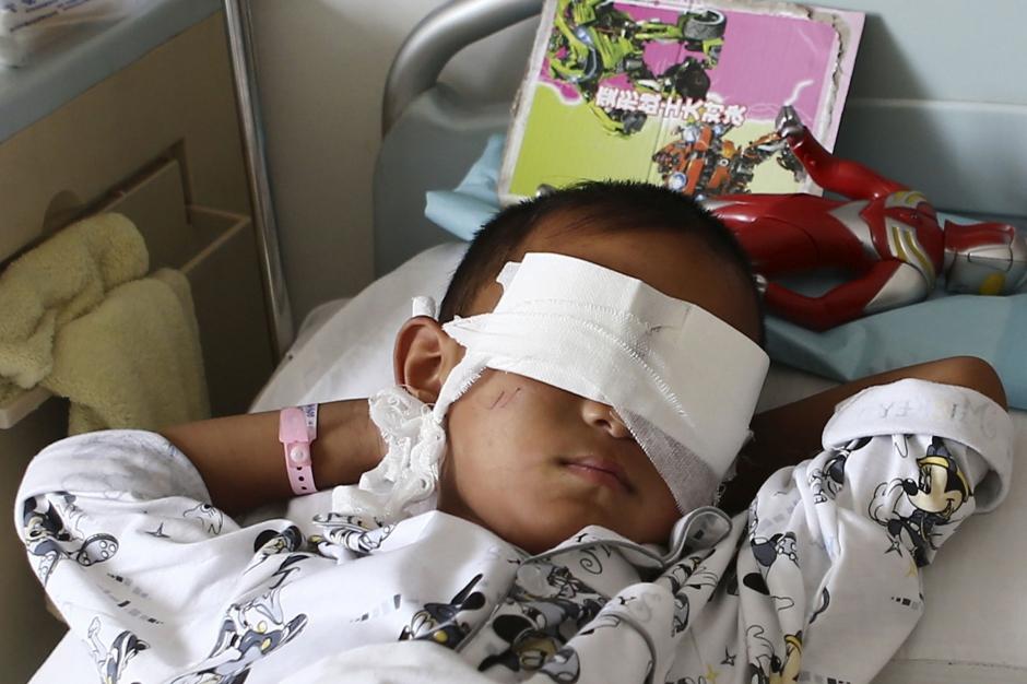 un enfant de 6 ans se fait voler les yeux en Chine