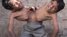 Deux frères siamois refusent de se séparer