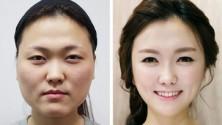 23 femmes coincées en Corée après une chirurgie esthétique