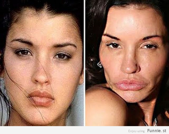 the_horrors_of_terrible_plastic_surgery_640_10