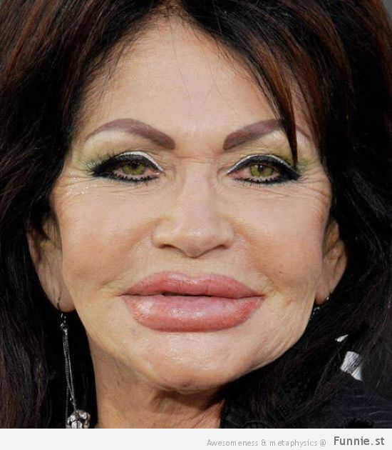 the_horrors_of_terrible_plastic_surgery_640_13