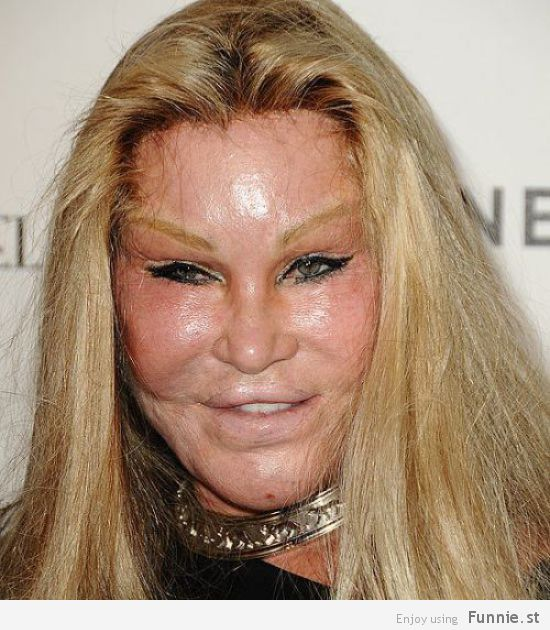 the_horrors_of_terrible_plastic_surgery_640_14