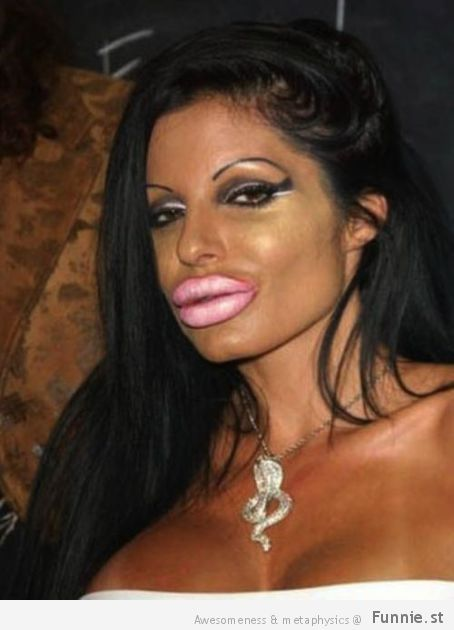 the_horrors_of_terrible_plastic_surgery_640_30