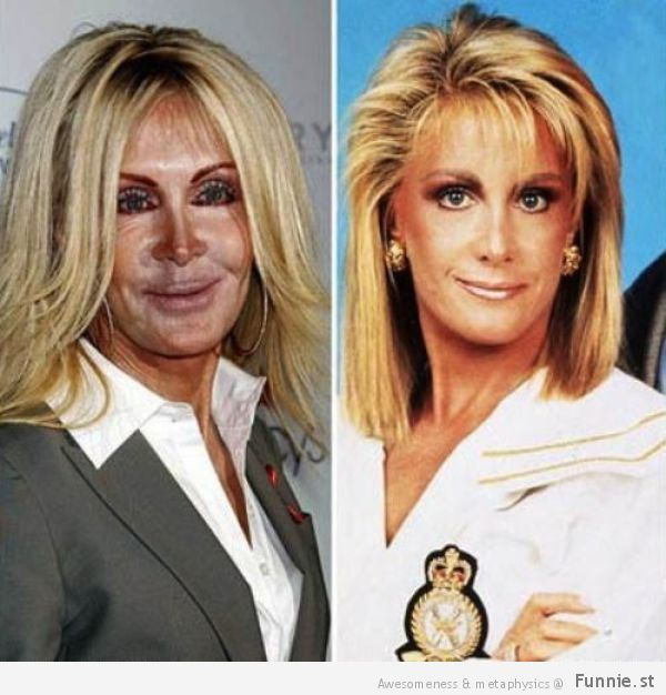 the_horrors_of_terrible_plastic_surgery_640_31