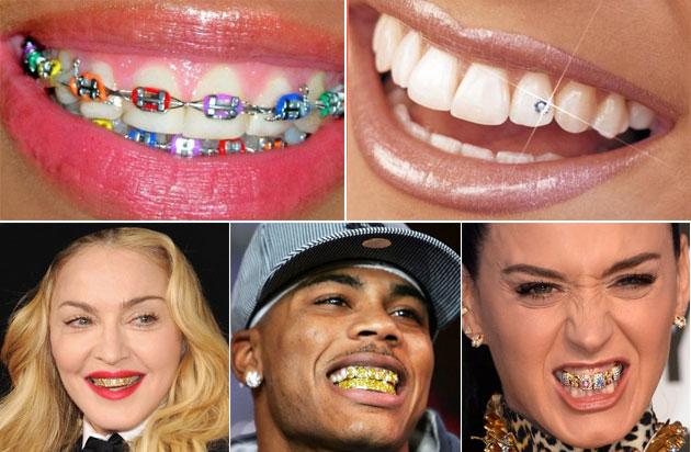dents-bijoux