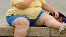 L'obésité : un poids réel sur l'économie marocaine