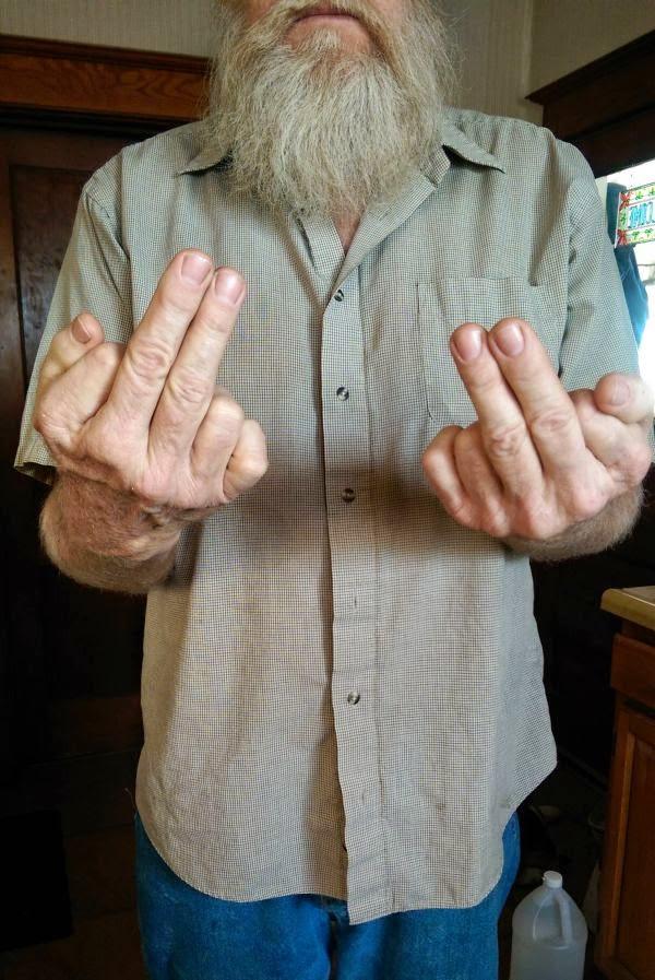 6_fingers_people