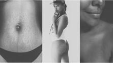 Tendance: les femmes publient des clichés de leurs corps au naturel