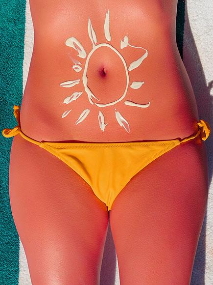 sunburn-435