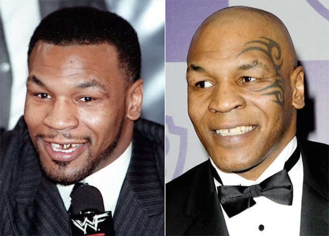 Credit: Levy, Djansezian/Getty Original Filename: gal_teeth_mike-tyson.jpg