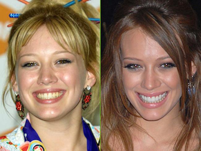 12-photos-des-dents-de-stars-avant-et-apres-une-bonne-chirurgie-dentaire4