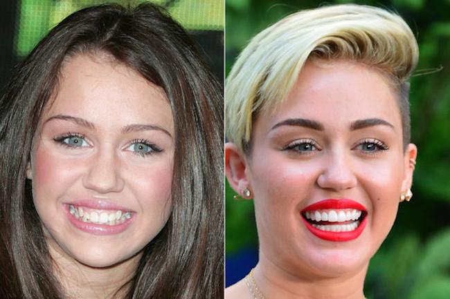 12-photos-des-dents-de-stars-avant-et-apres-une-bonne-chirurgie-dentaire9