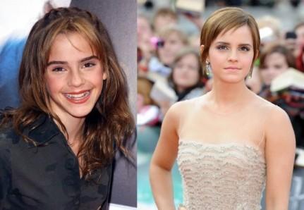 Emma-Watson_resize_diapo_w