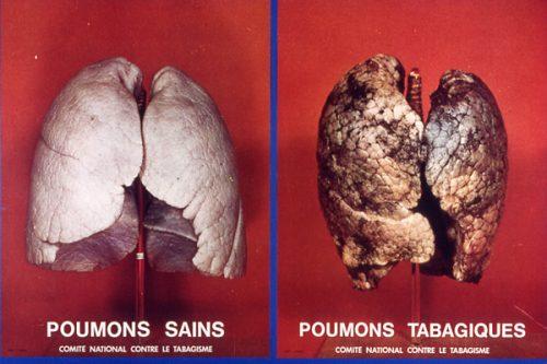 Poumons-sains-poumons-fumeurs-p4