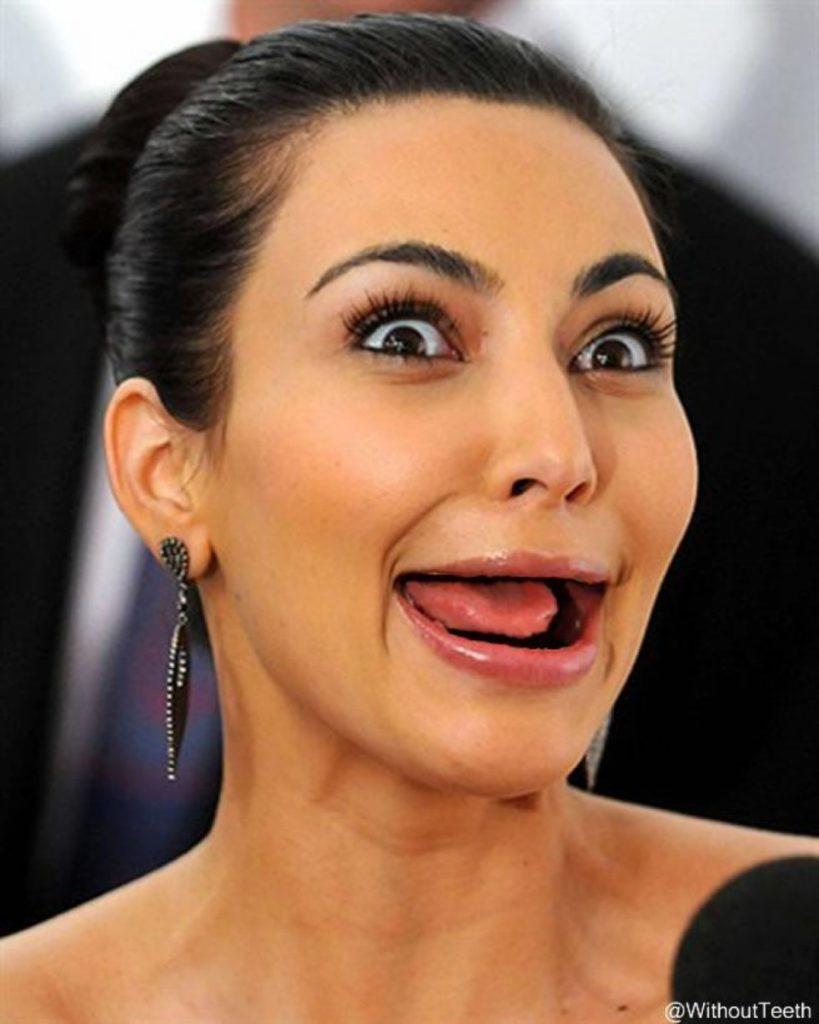 kim_kardashian_west-sans-dent_glandouille