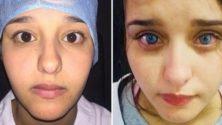 Vous pouvez désormais changer la couleur de vos yeux d'une façon permanente à 18.000 dhs