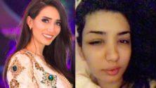 Vidéo: Violentée par son ex-mari, Chorouk Chelouati adresse un message aux marocaines