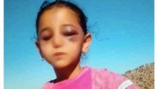 Une petite fille marocaine vient d'être violemment agressée…