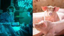 Un rein de porc transplanté avec succès sur un homme